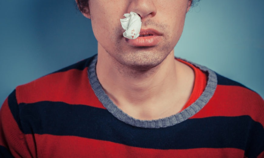 Dr. Temp Patterson Reveals How to Treat Nosebleeds
