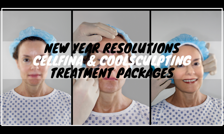 New Year Resolutions with a Cellfina CoolSculpting Treatments 29