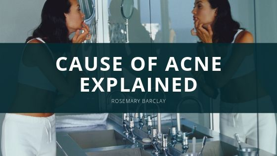 The True Cause of Acne Explained by Rosemary Barclay of Old Lyme,CT