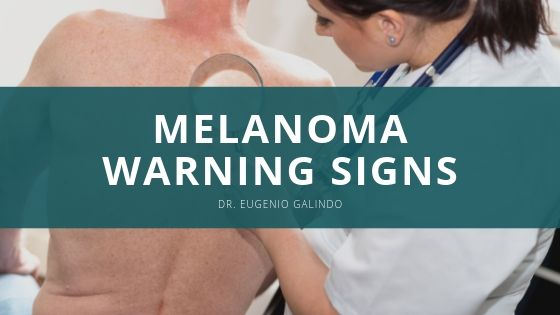 Dr. Eugenio Galindo Outlines Primary Melanoma Warning Signs