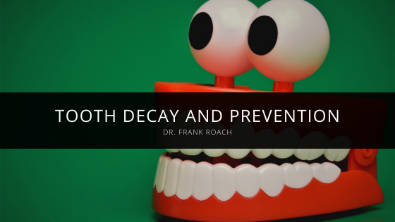 Dr. Frank Roach of Atlanta Explains Tooth Decay and Prevention